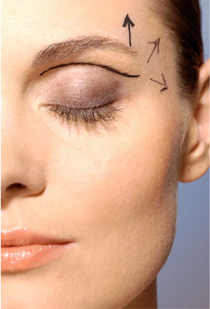 Blefaroplastia – chirurgia pleoapelor
