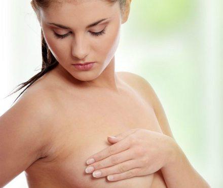 Corectarea sânilor lăsați