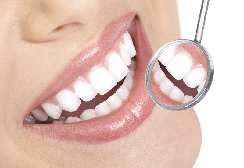 Dr. Oz te învață cum să-ți albești dinții rapid și ieftin