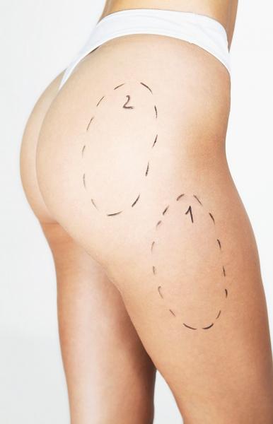 Lipoaspiratia cu laser este cea mai ușoară modalitate de a slăbi