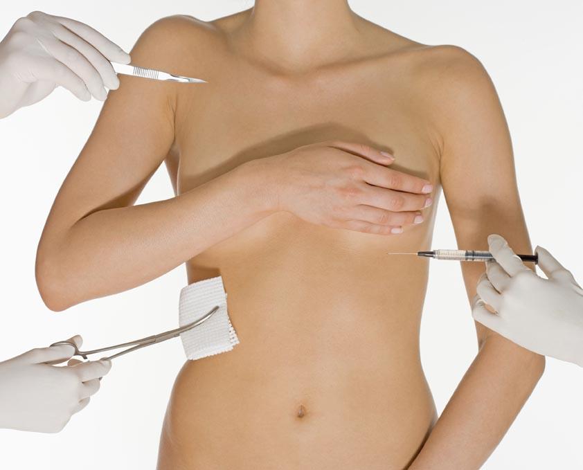 Sâni mai frumoși cu ajutorul mamoplastiei