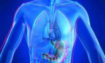 Scapa de kilograme cu chirurgia bariatrica