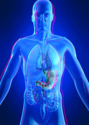 Scapă de kilograme cu chirurgia bariatrica