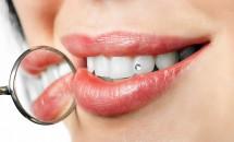 Cosmetica dentara pentru un zambet perfect