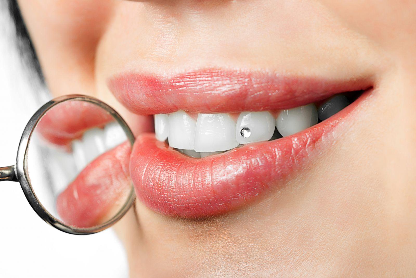 Totul despre cosmetica dentară