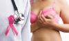 Cancerul de sân - simptome