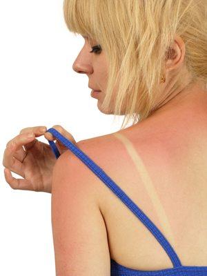 Ce nu trebuie să faceti dacă v-ati ars la soare