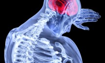 Boala Parkinson și Demența
