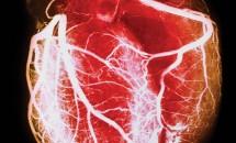 Arterele