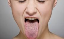 Cauzele alterarii gustului