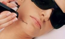 Intinerirea tenului cu ajutorul liftingului facial