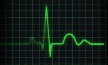 Insuficienta cardiaca cronica