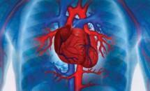Stenoza aortica - factori de risc