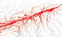 Venele brahiocefalice, venele iliace comune, vena pulmonara si vena cava