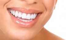 Ce trebuie sa stii despre cosmetica dentara?