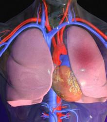 Edemul pulmonar - cauze si simptome