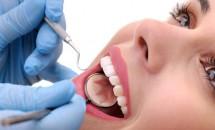 9 factori care duc la caderea dintilor