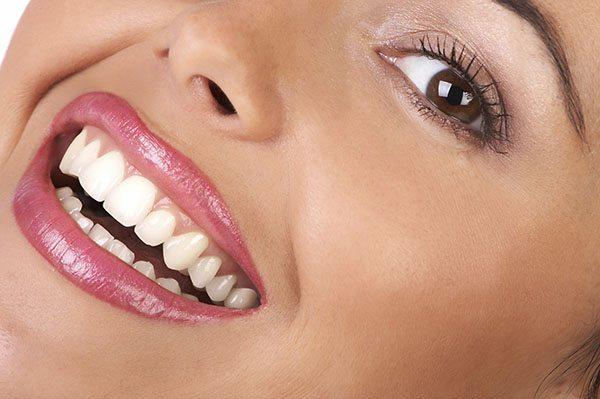 Fatetele dentare de portelan