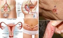 Cele mai întâlnite tipuri de cancer