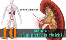 10 semne că ai pietre la rinichi