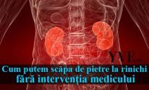 Cum putem scăpa de pietre la rinichi fără intervenția medicului