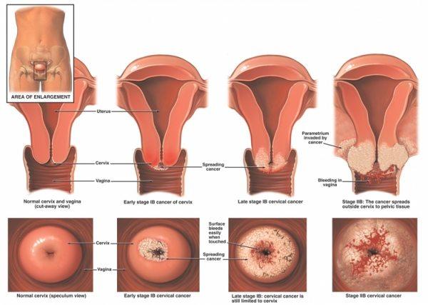 cancerului de col uterin