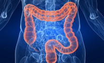 Simptomele cancerului de colon