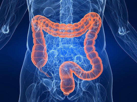 cancerului de colon