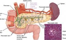 Simptomele cancerului de pancreas