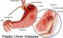 Simptomele cancerului de stomac