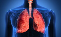 Simptomele cancerului pulmonar