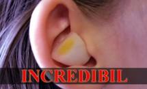 Incredibil ce se întâmplă dacă ții un cățel de usturoi în ureche câteva secunde!