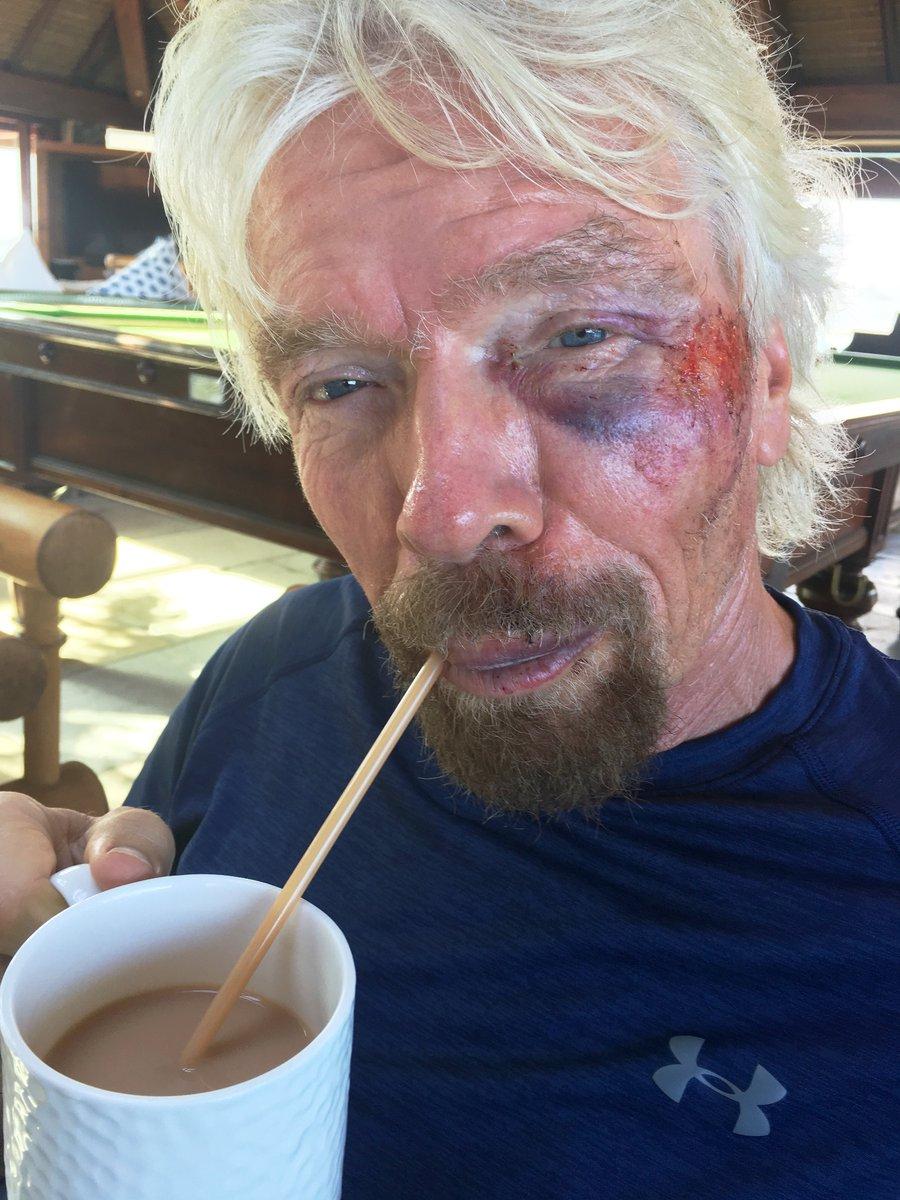 """Magnatul Richard Branson, detalii despre accidentul care i-a pus viața în pericol! """"Am crezut că voi muri. Viaţa mi-a trecut prin faţa ochilor!"""""""