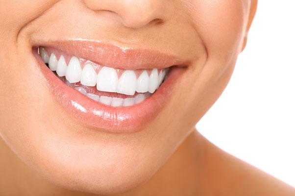 femeie cu dintii foarte albi