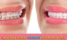Aparatul dentar schimbă fizionomia feței