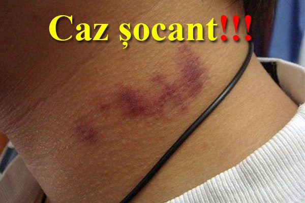 Caz șocant. Iată ce s-a întâmplat cu un tânăr după ce a fost sărutat pe gât de prietena lui. Până și medicii au rămas uimiți!