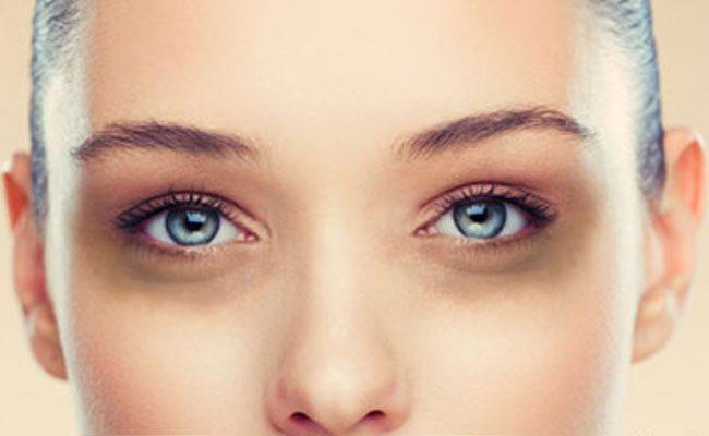 Scapă de cercurile negre de sub ochi cu aceste două ingrediente
