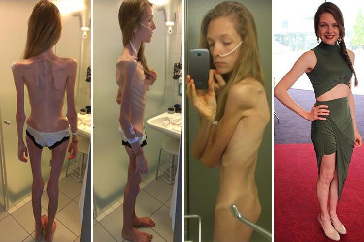 A ajuns în pragul anorexiei.