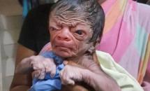 Este nou-născut, dar arată ca un bătrân! Părinții sunt bucuroși, dar și șocați