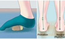 Scapă rapid de durerea de picioare!