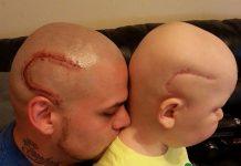 Gestul uimitor al unui tata care si-a tatuat cicatricea fiului sau bolnav de cancer.