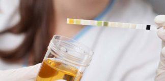 Hematii in urina